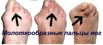 молоткообразные пальцы ног лечение и корректоры