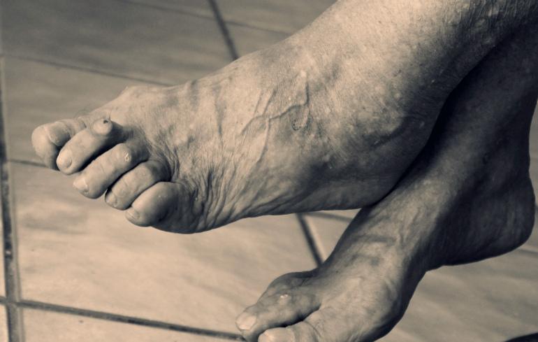 лечение вальгусной деформации пальца