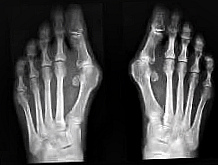 Косточки на пальцах ног – эффективные народные средства лечения: есть ли они?