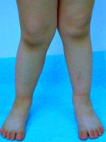 Детское плоскостопие: профилактика и лечение