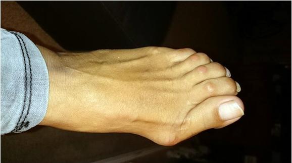 как исправить косточки на ногах