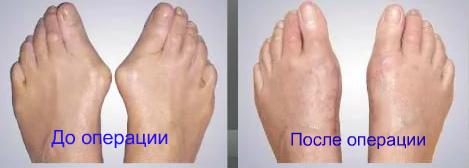 как избавиться от косточки на ногах операция