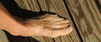 косточка на пальцах народные средства