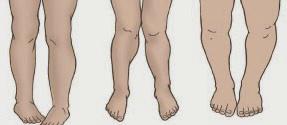 плоскостопие у ребенка 2 года