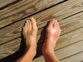 отек ног после операции