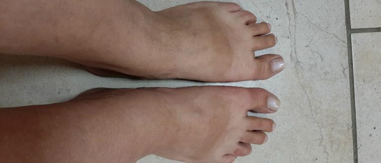 отек ног после операции что делать