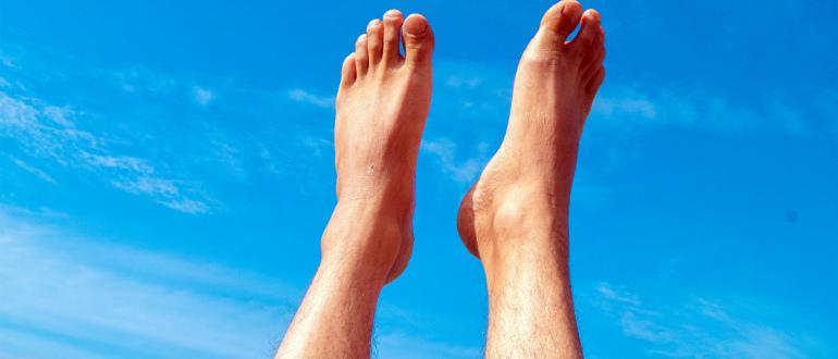 Варикоз ног: профилактика и лечение, причины возникновения
