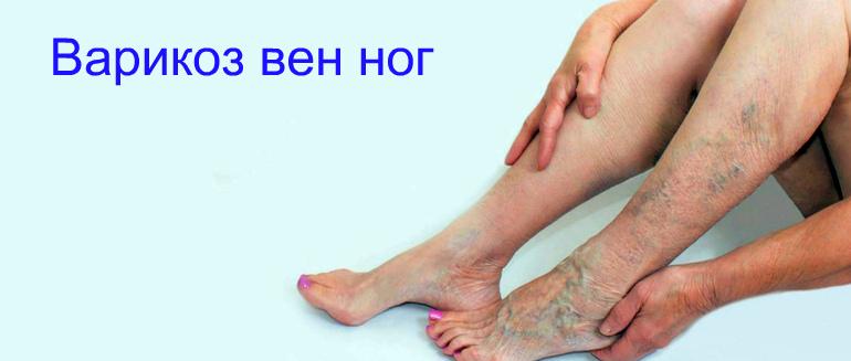 варикоз ног профилактика